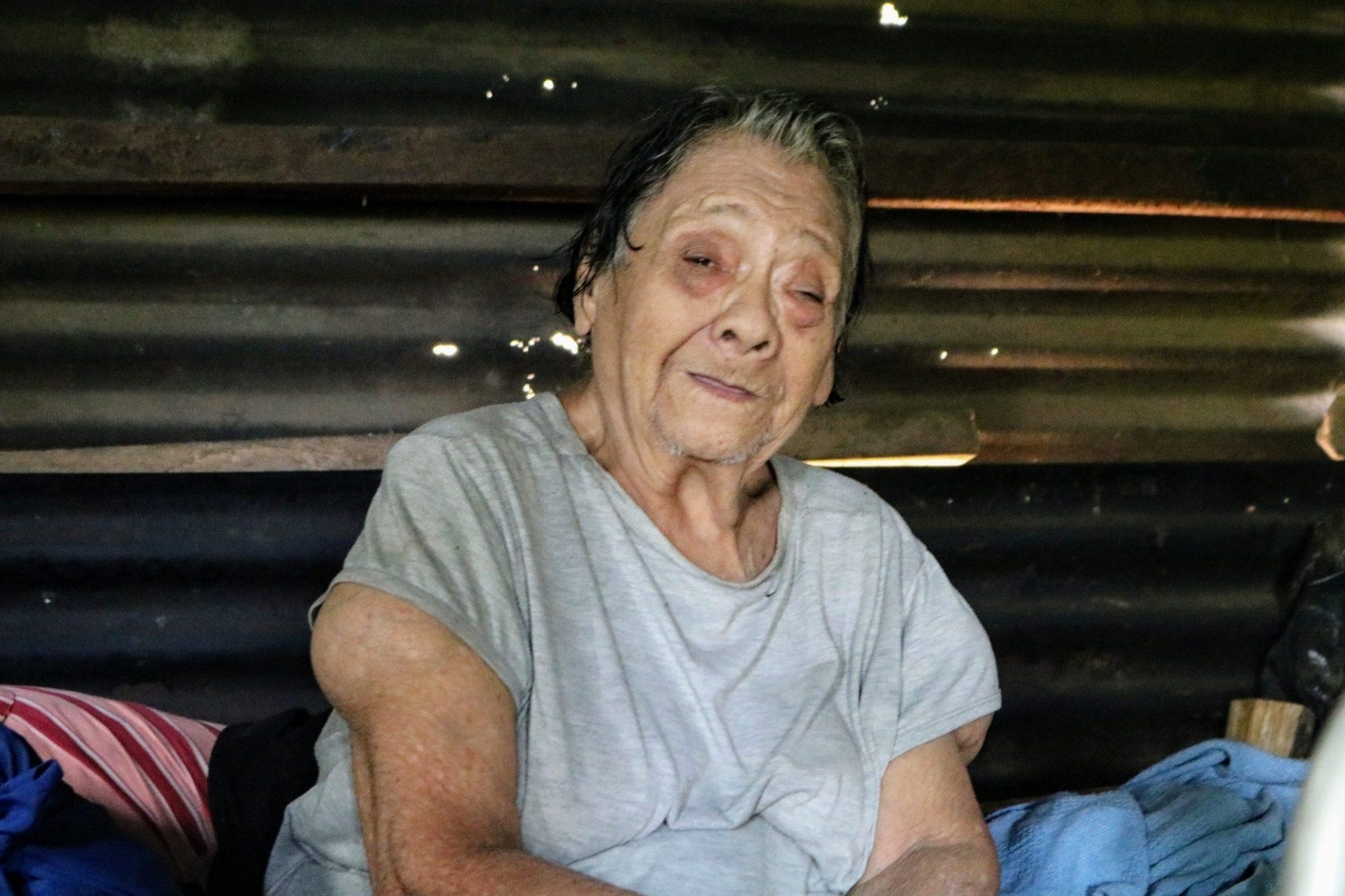 Maria Teresa Samora Cruz- 79